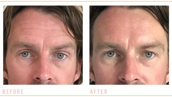 Male Non-Surgical Facial Toning